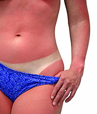 Enfermedades-radiaciones solares-quemaduras solares