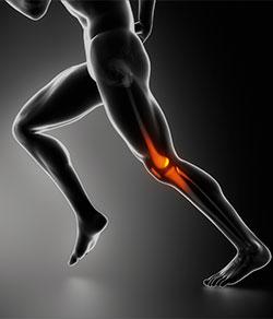 dolor rodilla corredor