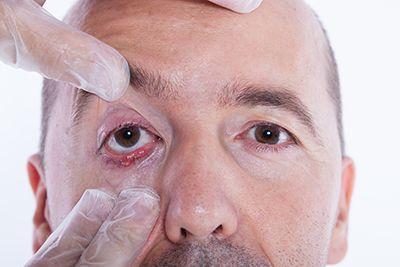 revisión de ojo a un hombre