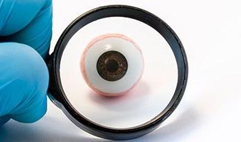 lupa diagnósticando un ojo