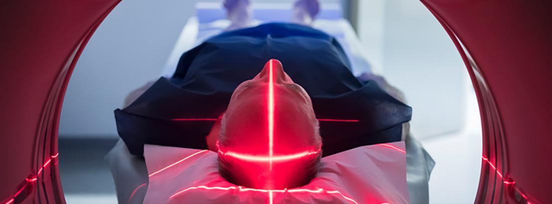 paciente tumbado realizándose una tomografía por emisión de positrones