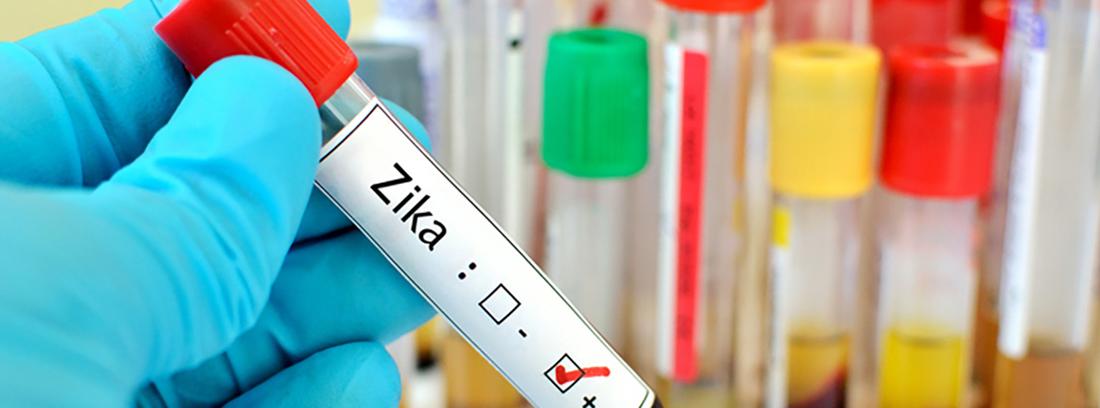 análisis virus zika