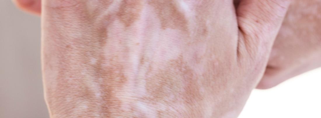 Conoce El Vitiligo Sus Causas Y Su Tratamiento Canalsalud