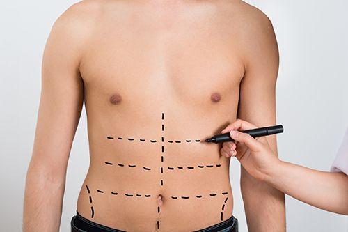 señalización en abdomen de hombre para una cirugia