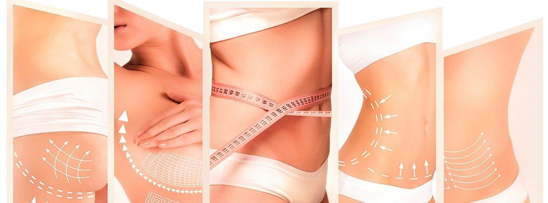 diferentes casos de cirugía estética en mujer