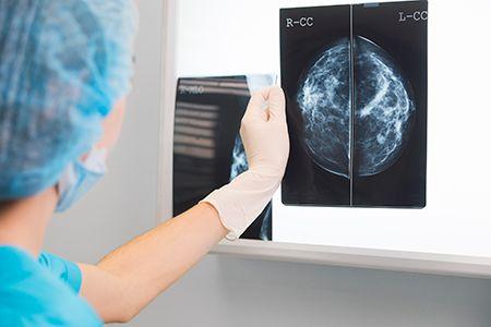 especialista viendo una mamografía