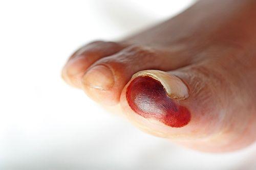 dedo gordo del pie con gangrena