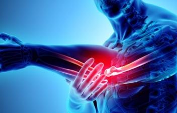 concepto de dolor en los tendones