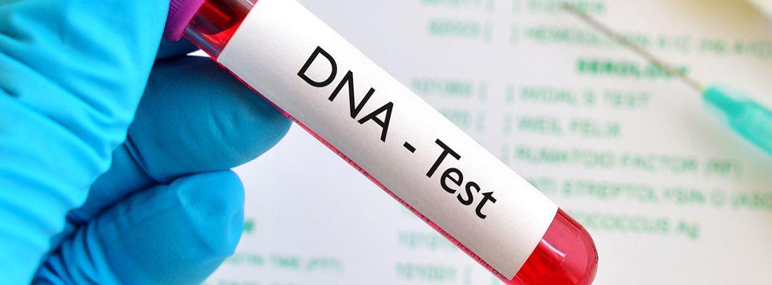 tubo de ensayo con sangre para test genético