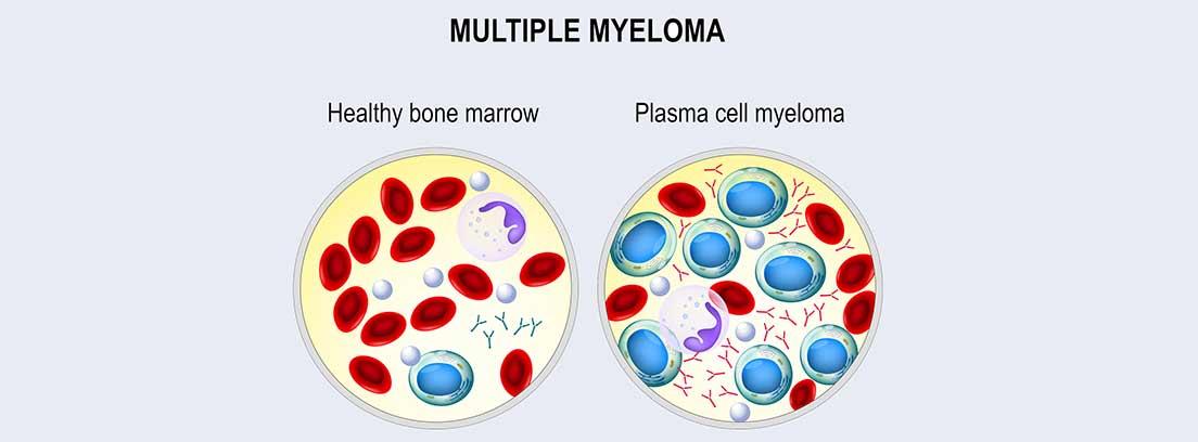 Células de Mieloma Múltiple