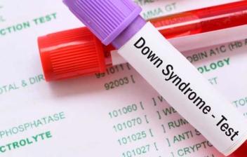 tubos de ensayo para realizar test de síndrome de down