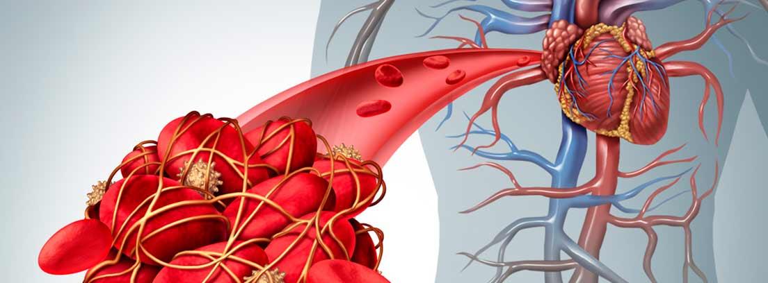 probabilidad de coagulos en la sangre