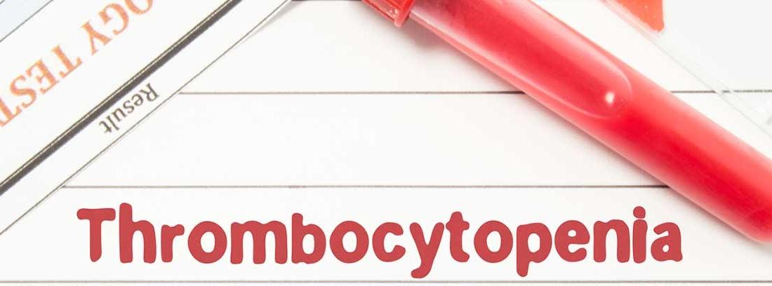 concepto de trombocitopenia o plaquetas bajas