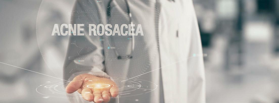 especialista con acné rosácea en la palma de la mano