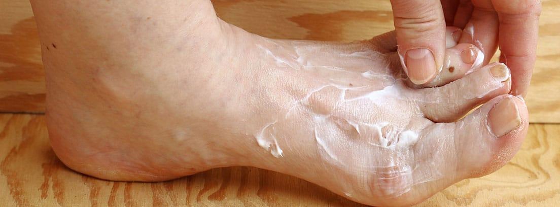 Infecciones micóticas de la piel: mujer echandose crema en los pies