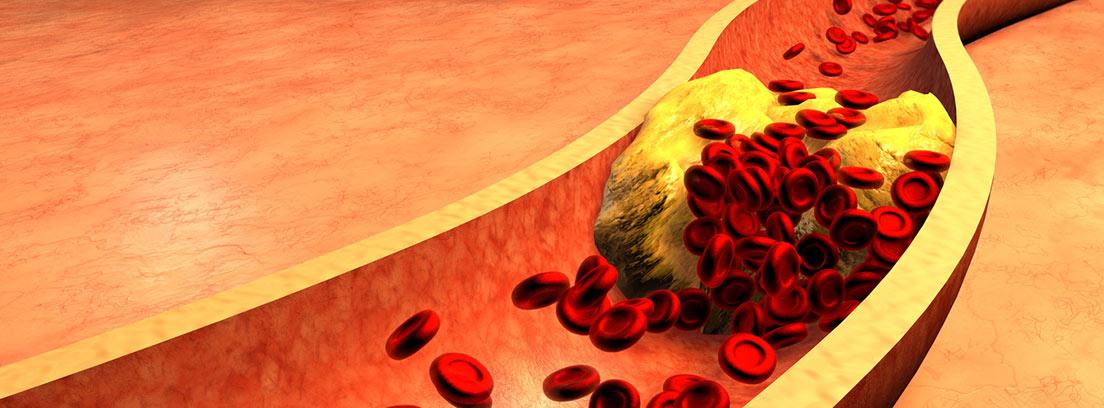 Arteria atascado con las plaquetas y el colesterol