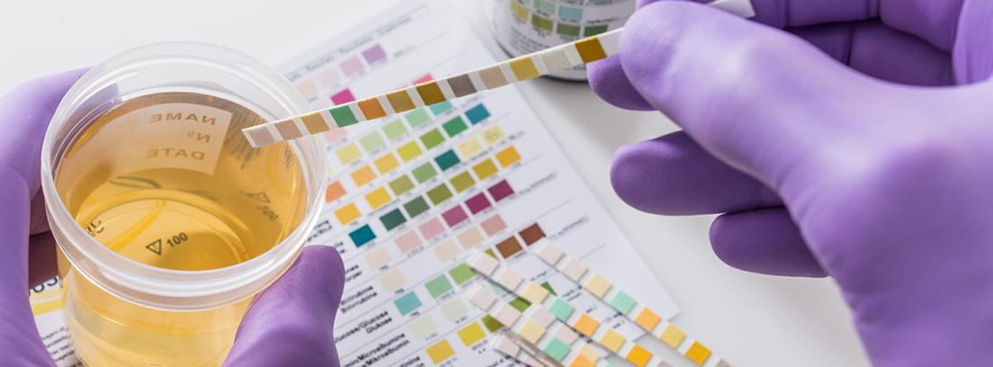 ¿Qué causa las bacterias frecuentes en la orina?