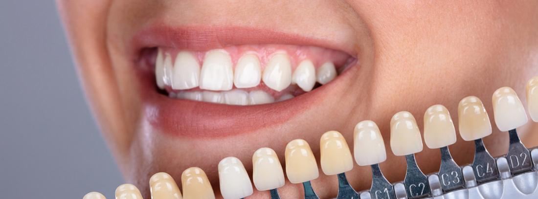 Que Son Carillas Dentales Precio Y Tratamiento Canalsalud