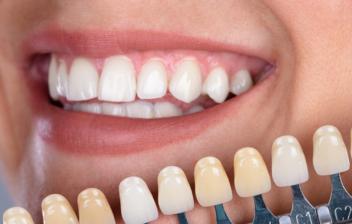 boca abierta y diferentes carillas dentales