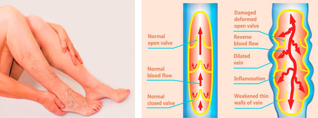 piernas de mujer y cuadro conb explicación de la insuficiencia venosa