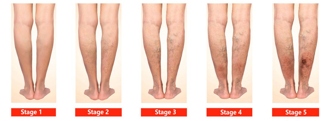piernas en diferentes estadios de insuficiencia venosa