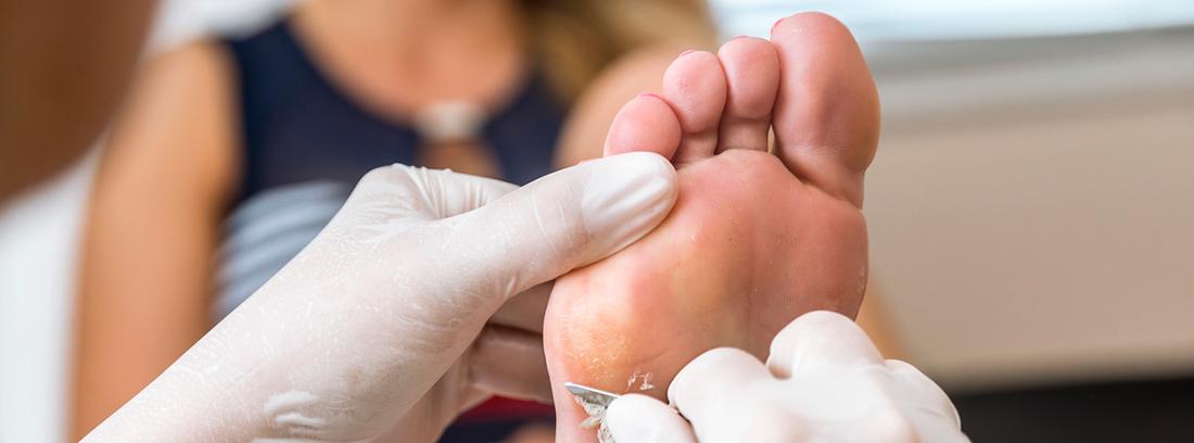 especialista quitando callosidad de los pies