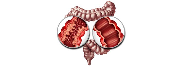 Intestino con la enfermedad de crohn