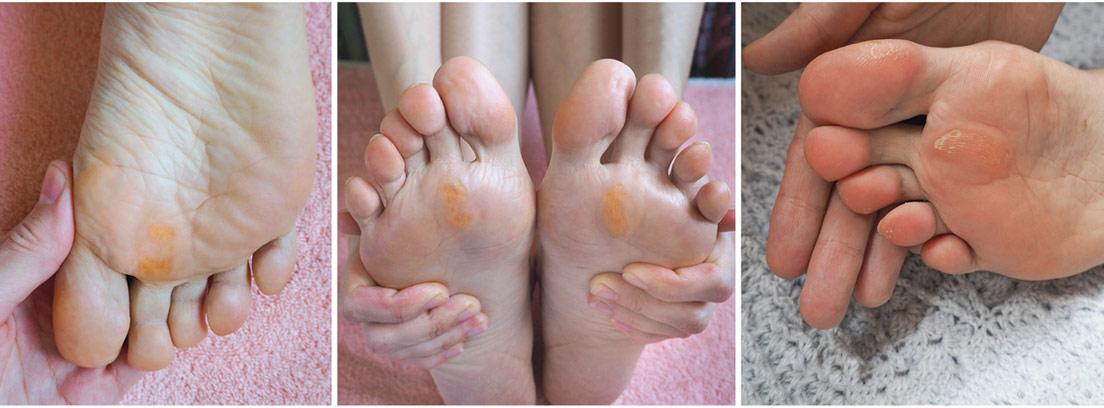 collage de pies con callosidades