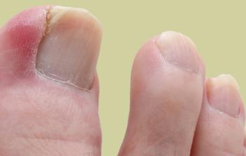 uñero, onicocriptosis o uña encarnada