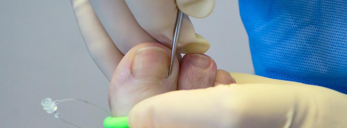 cirugia de un uñero