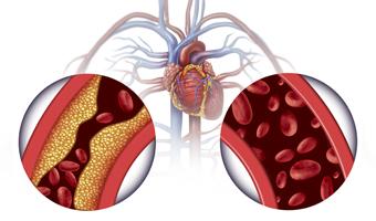 Colesterol en venas ya rterias