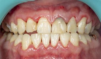 Boca con gingivitis