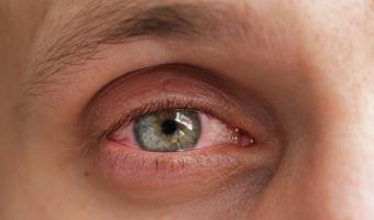 ojo irritado por conjuntivitis