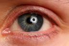 ojo inflamado