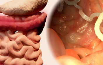 aparato digestivo e imagen de tenia en intestino
