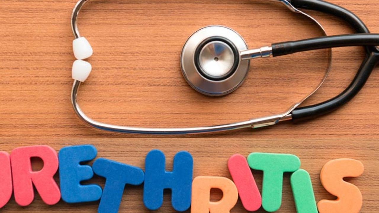 uretritis és krónikus prosztatitis