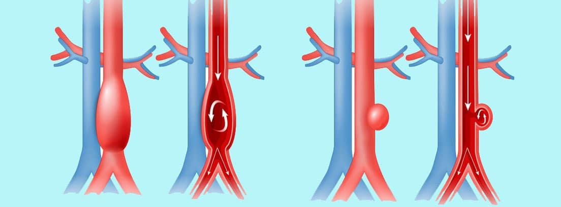 Aneurisma de aorta: dibujo de aneurisma de aorta