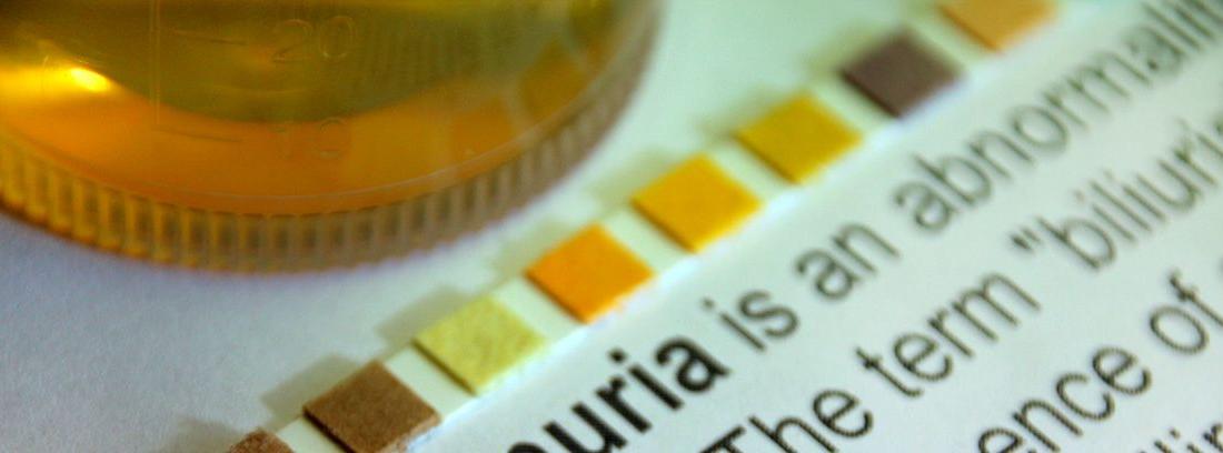 bilirrubina: test