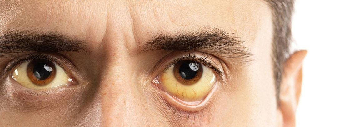 Bulirrubina:hombre con los ojos de un tono amarillento