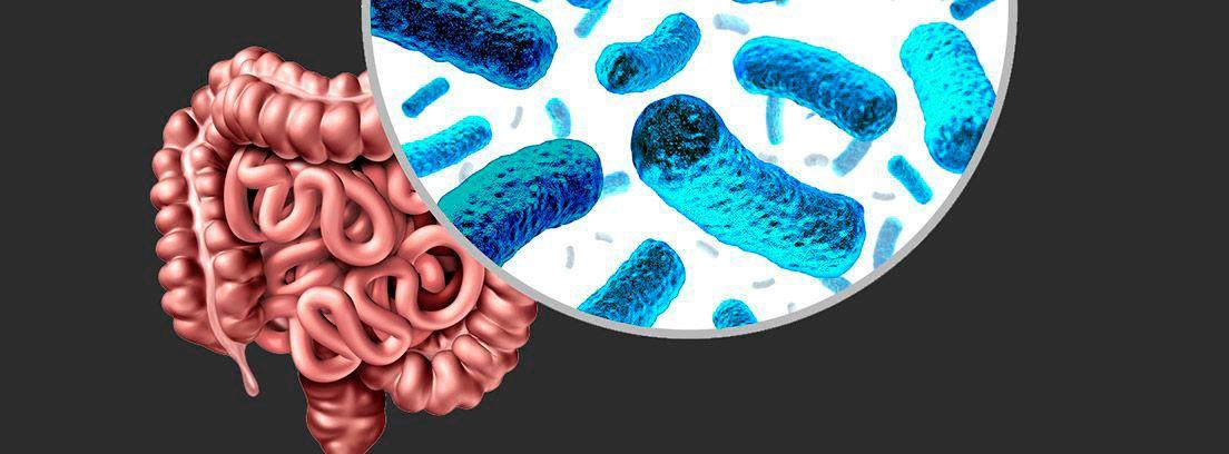 SIBO: intestino y lupa observando las bacterias