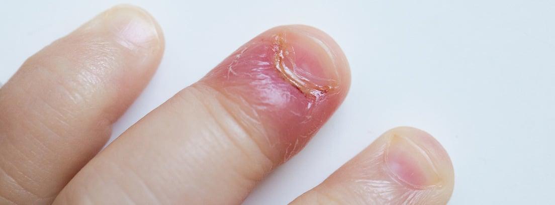 Enfermedad de Kawasaki:inflamación bateriana en los dedos de un niño