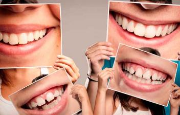 familia de cuatro personas con bocas sonrientes