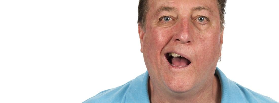 Qué es la parálisis de Bell: hombre con la boca torcida, parálisis facial