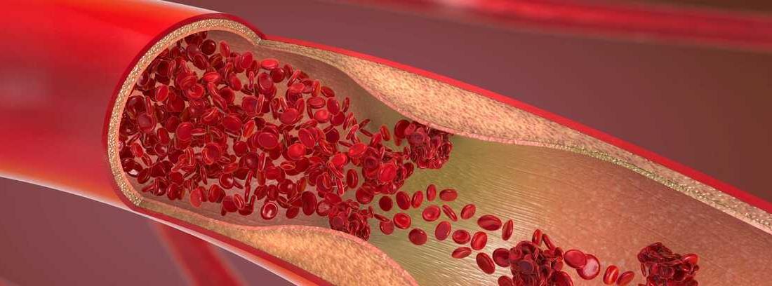 Policitemia vera: aumento de los glóbulos rojos