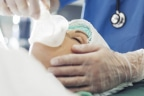 ¿Cómo se administra la anestesia general? Riesgos : paciente en quirófano con anestesia general