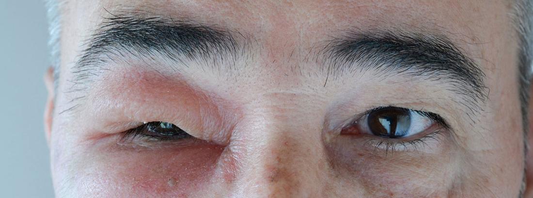¿Qué son los angioedemas?hombre con una inflamación en un ojo