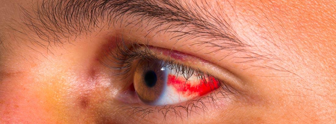 Derrame ocular: ojo humano con un derrame
