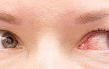 ¿Qué hacer si tenemos un derrame ocular?: ojos de mujer con un derrame en uno de ellos