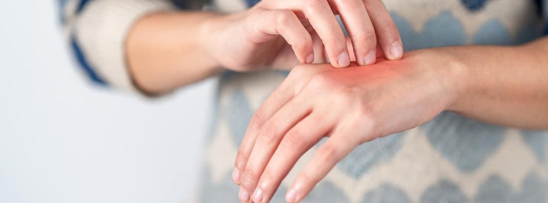 Problemas de piel causados por las mascarillas y geles anti-Covid: persona arrascandose la mano con una erupción