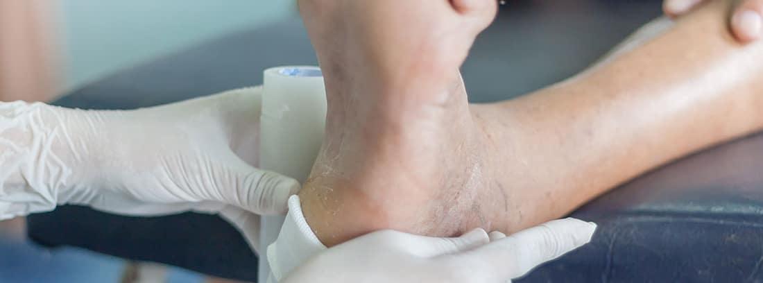 Escala de Norton: pie con una úlcera por presión